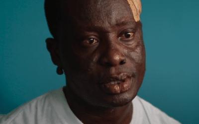 Jean-Marc : La vie plus forte que la lèpre