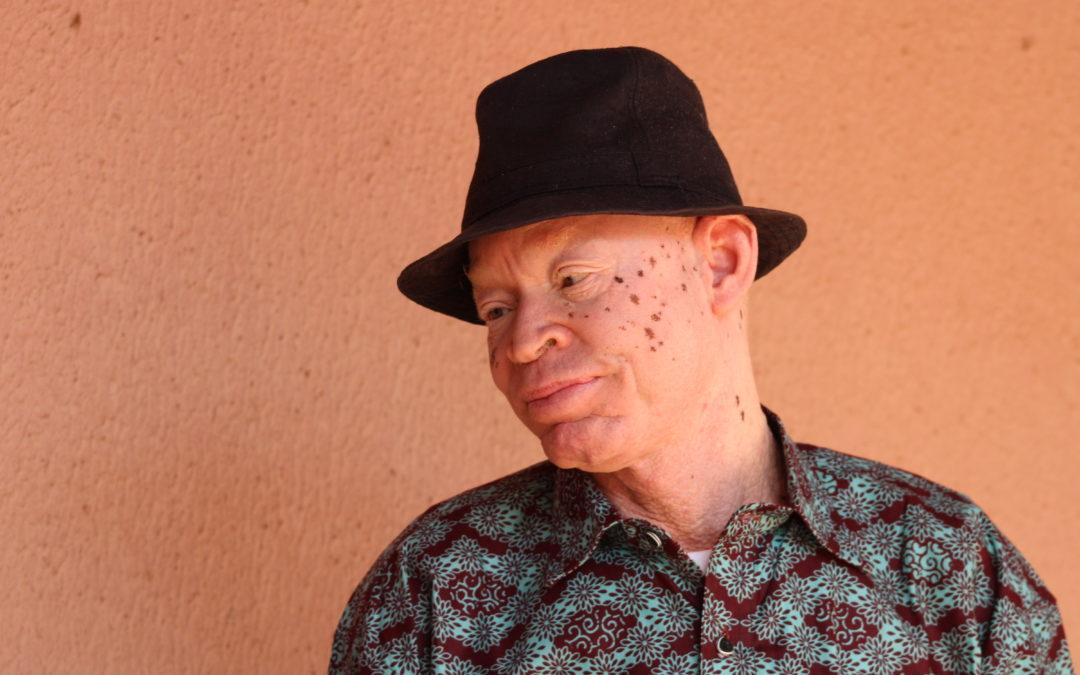Fabéré Sanon : «J'ai difficilement vécu l'albinisme durant mon enfance.»
