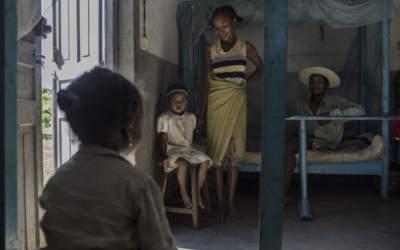 La lèpre est loin d'être éliminée à Madagascar