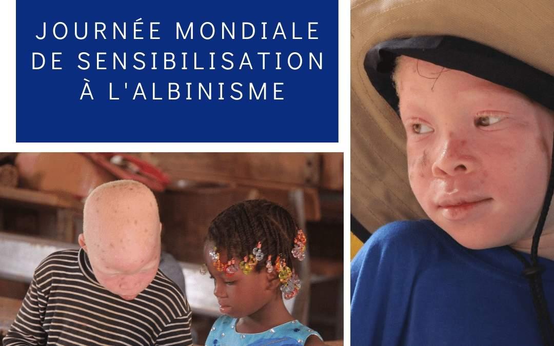 L'ignorance autour de l'albinisme conduit à l'exclusion des enfants malades